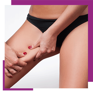 cellulite_removal_book_now