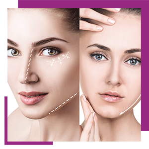 mesotherapy_book_now